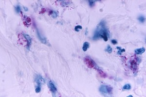 This light photomicrograph revealed some of the histopathologic cytoarchitectural characteristics seen in a mycobacterial skin infection./CDC