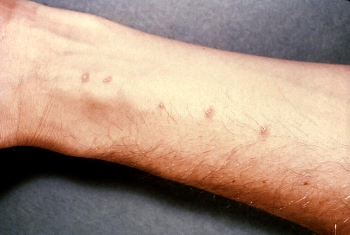 Schistosome dermatitis