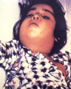 "This child with diphtheria presented with a characteristic swollen neck, sometimes referred to as ""bull neck"".  Image/CDC"