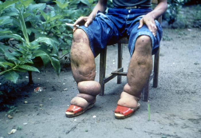 Elephantiasis of leg due to filariasis/CDC