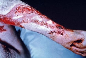 This patient's arm shows the effects of the fungal disease sporotrichosis, caused by the fungus Sporothrix schenckii./CDC