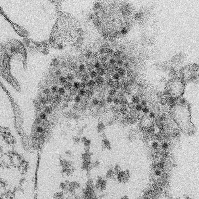 Numerous, spheroid-shaped Enterovirus-D68 (EV-D68) virions/Cynthia S. Goldsmith, Yiting Zhang