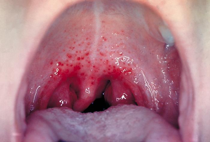 Strep throat is caused by group A Streptococcus bacteria./CDC