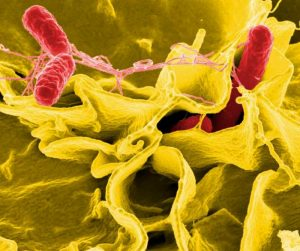 Salmonella bacteria (red)/National Institute of Allergy and Infectious Diseases (NIAID)