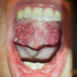 Ulcerous herpangina on soft palete and oropharynx from Hand Foot and Mouth Disease (HFMD) Public domain image/shawn c