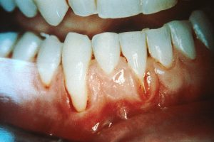 Gum damage caused by the use of smokeless tobacco (chewing tobacco). Image/ National Cancer Institute