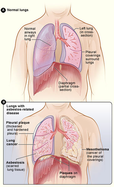 Image/National Heart Lung and Blood Institute