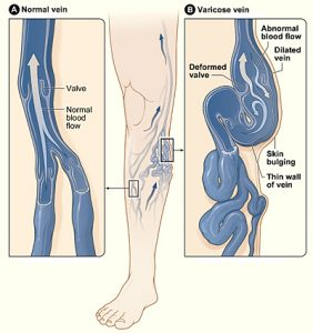 Varicose veins Image/National Heart Lung and Blood Institute