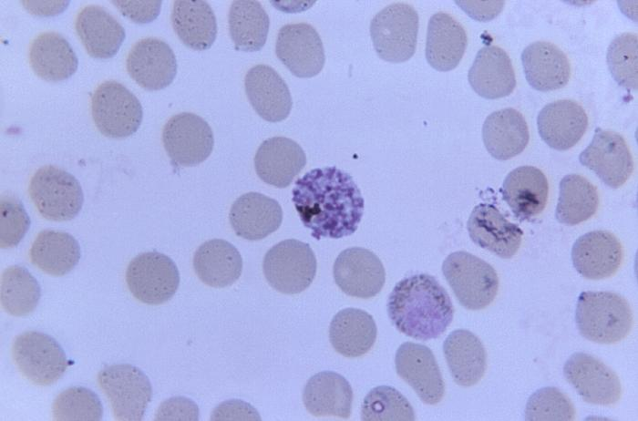 Mature simian malarial schizont and gametocyte/CDC