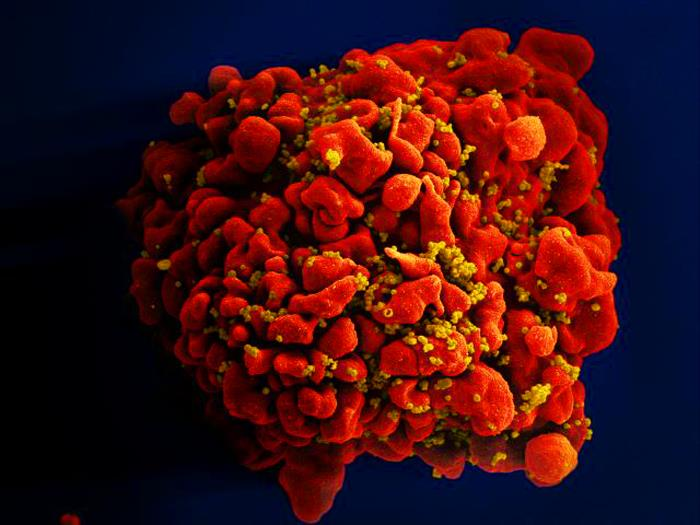 Red-colored H9-T cell that had been infected by numerous, spheroid-shaped, mustard-colored human immunodeficiency virus (HIV) particles Image/NIAID