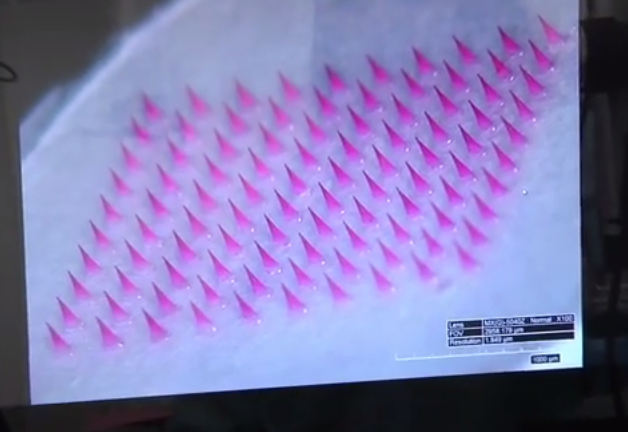 Microneedle Patch/Video Scren Shot