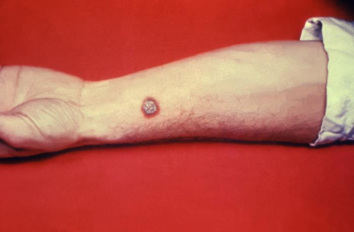 Cutaneous anthrax lesion /CDC