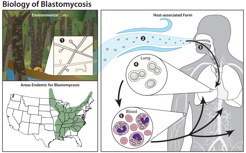 Blastomycosis/CDC