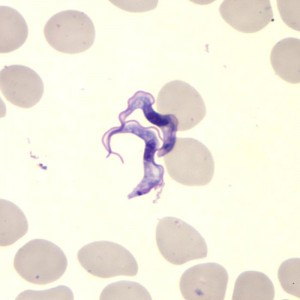 This Giemsa-stained light photomicrograph revealed the presence of two Trypanosoma brucei parasites, which were found in a blood smear. Image/CDC