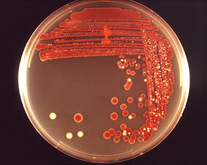 Serratia marcescens/CDC