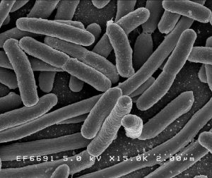 E. coli/National Institute of Allergy and Infectious Diseases (NIAID)