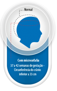Image/Brazil Health Ministry