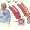 Atherosclerosis as a result of coronary heart disease. Image/National Heart, Lung and Blood Institute