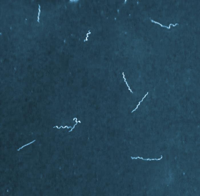 #2 Borrelia mayonii spirochetes/Adam Replogle