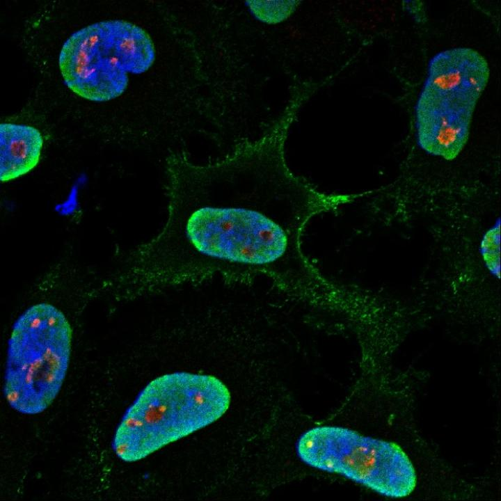 Infection of human cells with Hendra virus (green) is critically dependent on fibrillarin (red), a host protein that resides deep within the cell nucleus (blue). Image/Deffrasnes et al.