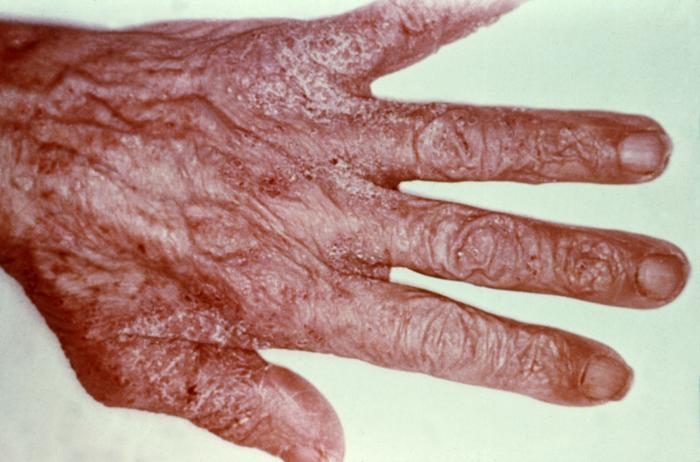 This patient's hand reveals a scabies infestation of the mite species Sarcoptes scabiei var. hominis/CDC