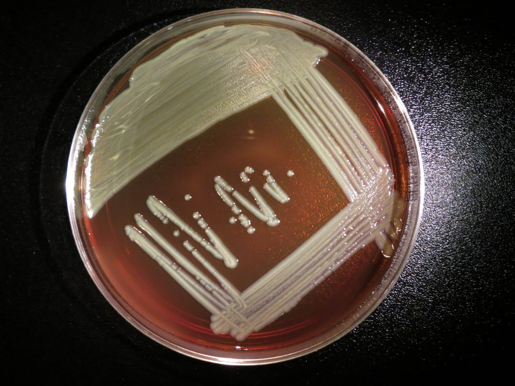 Elizabethkingia anophelis growing on a blood agar plate. Image/CDC's Special Bacteriology Reference Lab