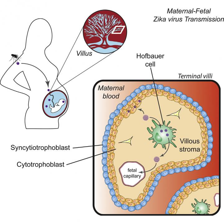 This visual abstract depicts the findings of Quicke et al., who demonstrate that a contemporary ZIKV strain infects and replicates in primary human placental macrophages and cytotrophoblasts, suggesting a route for ZIKV to cross the placental barrier. Image/Quicke and Bowen et al./Cell Host & Microbe 2016