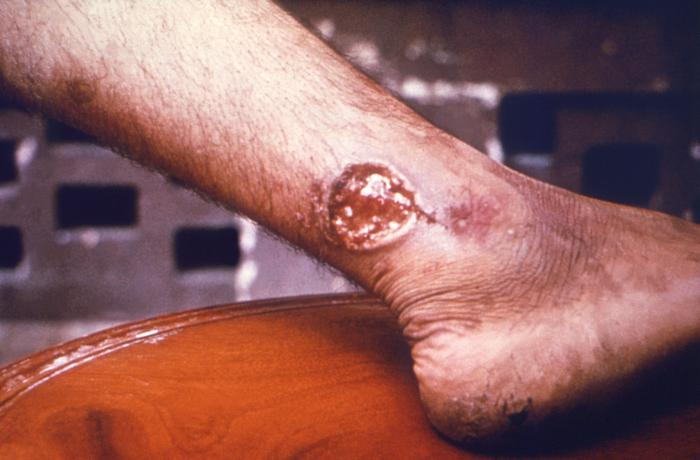 Cutaneous leishmaniasis/CDC