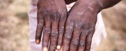Monkeypox Image/CDC