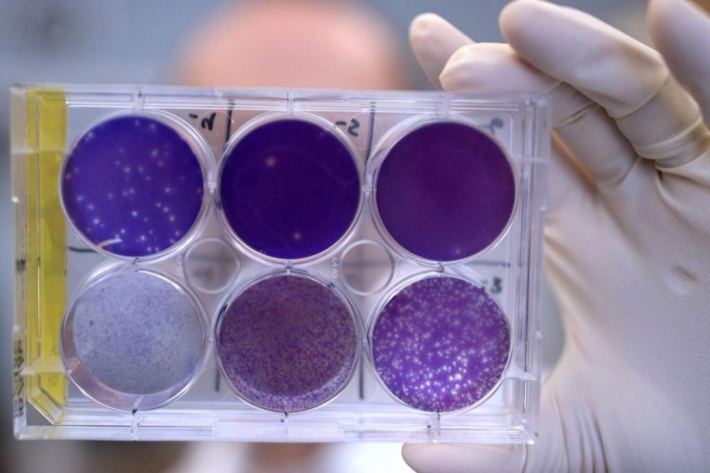 A researcher holds a tray of Zika virus growing in animal cells at Washington University School of Medicine in St. Louis. There is no treatment available to block Zika virus in a pregnant woman from infecting her fetus and potentially causing severe birth defects. But researchers have identified a human antibody that prevents, in pregnant mice, the fetus from becoming infected and the placenta from being damaged. The antibody also protects adult mice from Zika disease. Image/Huy Mach