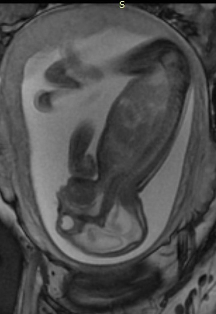This is a side view of a fetus with hands and clubfeet (arthrogryposis), enlargement of the cerebral fluid space and dilation of cerebral ventricles. Thinning of the brain tissue, a poorly developed cerebellum and the absence of brain cortical gyri. Image/Radiological Society of North America