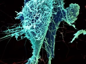 String-like Ebola virus particles are shedding from an infected cell in this electron micrograph. Image/NIAID