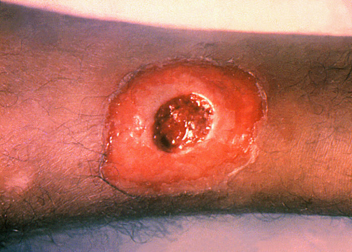 cutaneous diphtheria/CDC