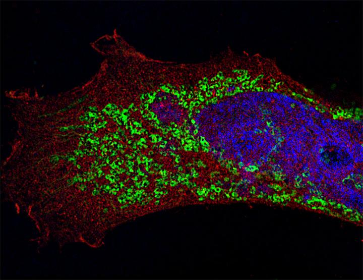 This is a human epithelial cell infected with H3N1 influenza A virus (in green). Red, LC3 (cytosolic protein); blue, DNA. Imaged by super-resolution structured illumination microscopy. 50 Z-stacked images. Image/Maria T. Sanchez, Mount Sinai School of Medicine