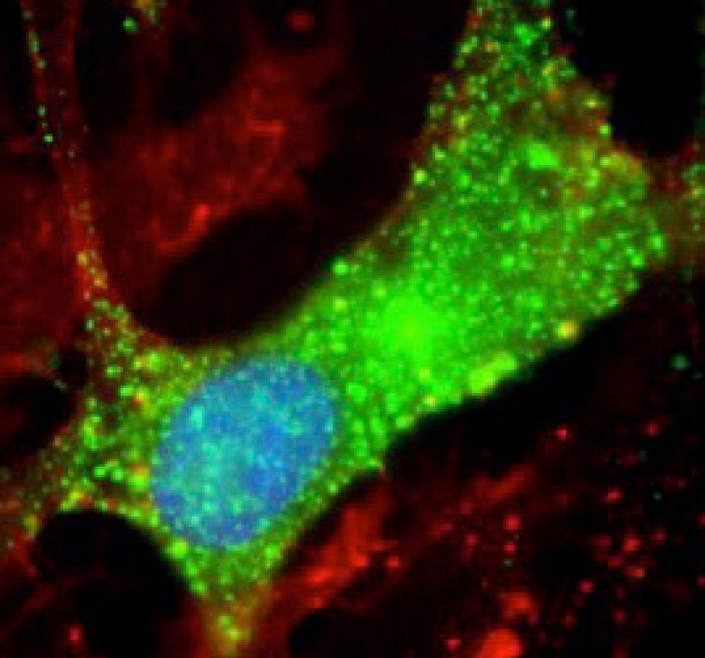 New clues to Nodding syndrome - NIH scientists discovered antibodies to leiomodin-1 (green) inside human brain cells. This study suggests that Nodding syndrome may be an autoimmune disease. -Avindra Nath, M.D., NINDS.