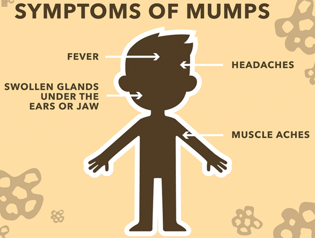 Seven mumps cases confirmed at Houston ICE detention facility