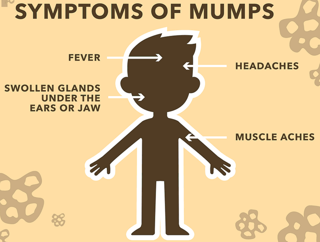 Mumps cases reported in University of Michigan students - Outbreak News Today
