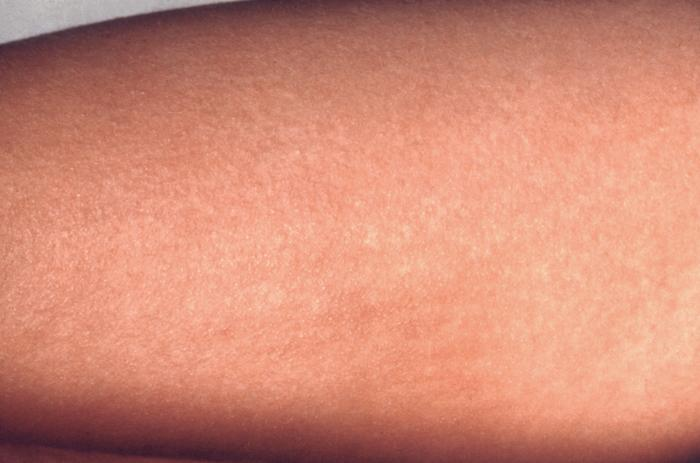 This patient revealed a scarlet fever rash on the volar surface of the forearm due to group A Streptococcus bacteria Image/CDC