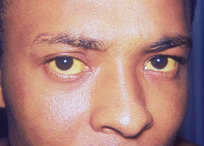 Hepatitis A is manifested here as icterus, or jaundice of the conjunctivae and facial skin/CDC