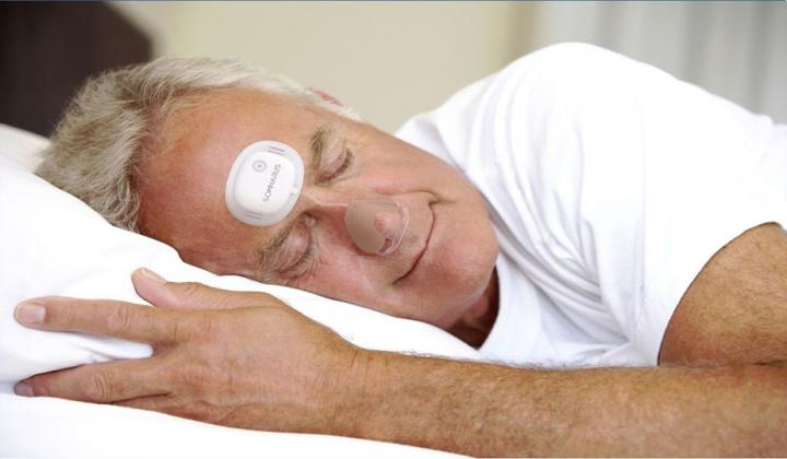 Results of a definitive clinical trial show that a new, disposable diagnostic patch effectively detects obstructive sleep apnea across all severity levels. Image/Somnarus, Inc.
