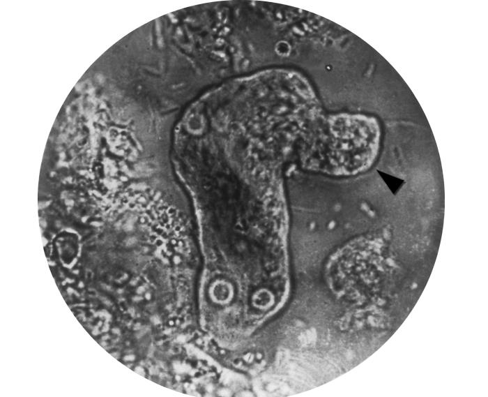 This photomicrograph of a living Entamoeba histolytica parasitic trophozoite reveals the method by which this organism moves. Image/CDC, AFIP