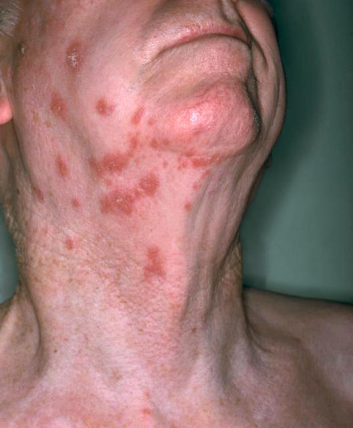 Produced by the National Institute of Allergy and Infectious Diseases (NIAID), this anterolateral view of this patient's neck reveals the presence of an erythematous rash that had been attributed to a shingles