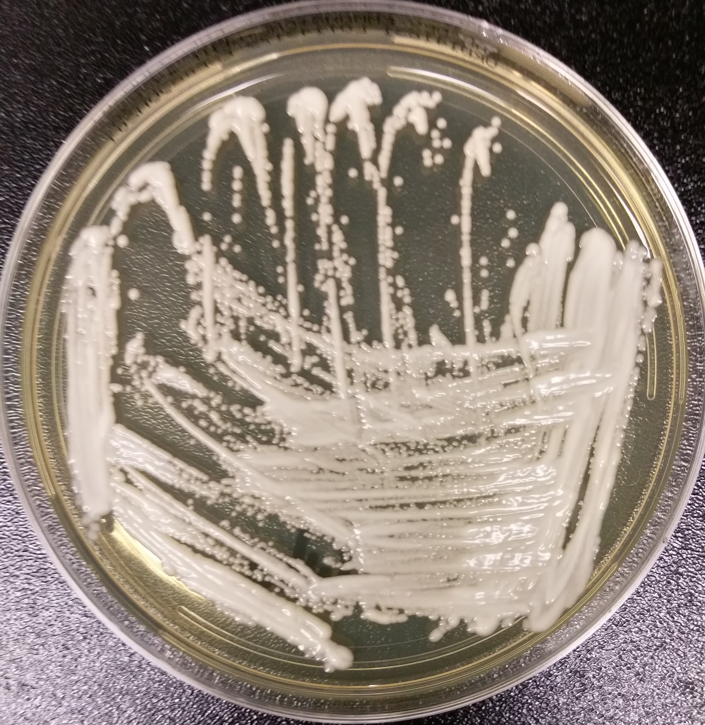 Australia: 1st known Candida auris case reported in Victoria - Outbreak News Today