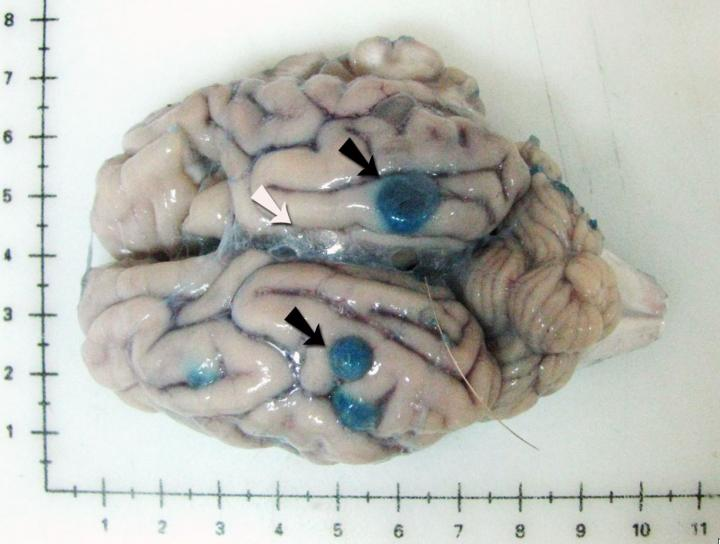 Pig brain naturally infected with Taenia solium five days after praziquantel treatment and infused Evans blue prior to necropsy. The black arrows point to blue cysts with increased vascular permeability in surrounding tissues; a clear cyst with unaltered vascular permeability in surrounding tissues is indicated with a white arrow. Image/Dr. Cristina Guerra-Giraldez, 2015