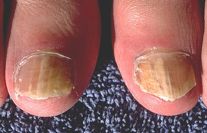 Onychomycosis due to Trichophyton rubrum, right and left great toe. Tinea unguium. Image/CDC