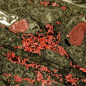 Colorized transmission electron micrograph of the ovary from a nonhuman primate infected with Ebola virus. Characteristic filamentous Ebola virus particles are present between cells (bright red). Intracytoplasmic Ebola virus inclusion bodies forming crystalline arrays can be seen within ovarian stromal cells (darker red). NIAID