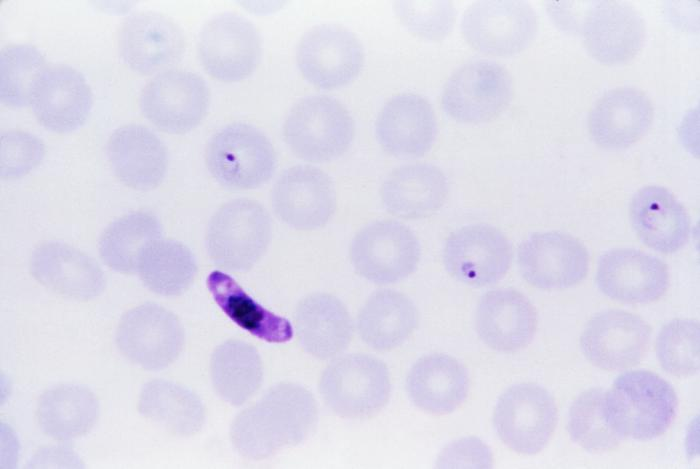P. falciparum rings and gametocyte/CDC