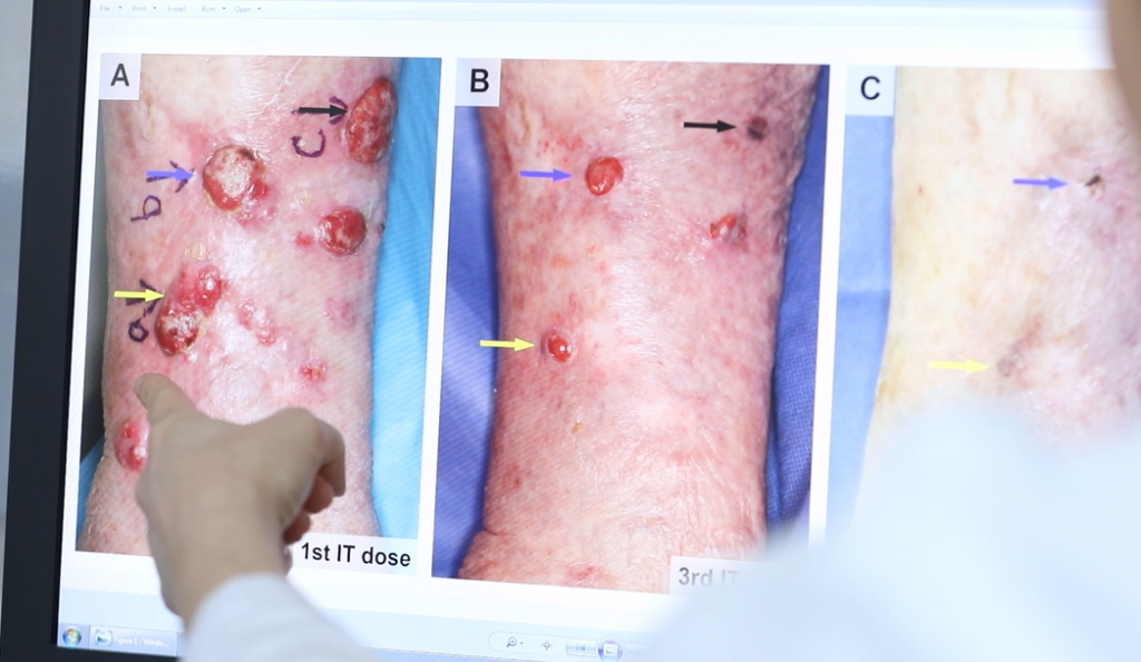 Squamous cell carcinoma Image/UM Video Screen Shot