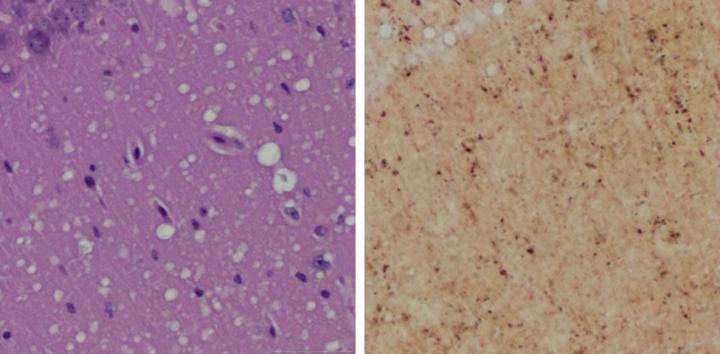 (Left) Staining shows spongiform degeneration. (Right) Staining shows intense misfolded prion protein. Image/Case Western Reserve University School of Medicine