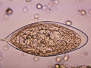 Schistosoma haemotobium egg Image/CDC